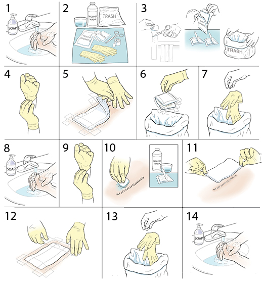 14 steps in changing a surgical wound dressing.