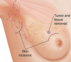 Three-quarter view of female underarm area showing breast anatomy ghosted in. Dotted line shows tissue and lymph nodes removed in modified radical mastectomy.