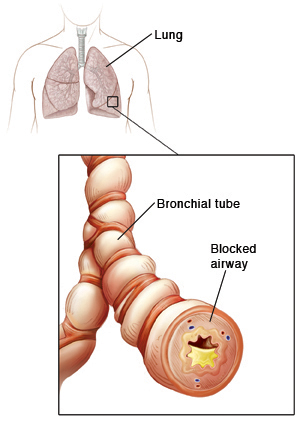 Outline of human chest showing trachea and lungs. Closeup of bronchial tube showing inflammation and mucus buildup.