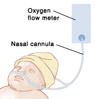 image of a baby's head, with nasal cannula