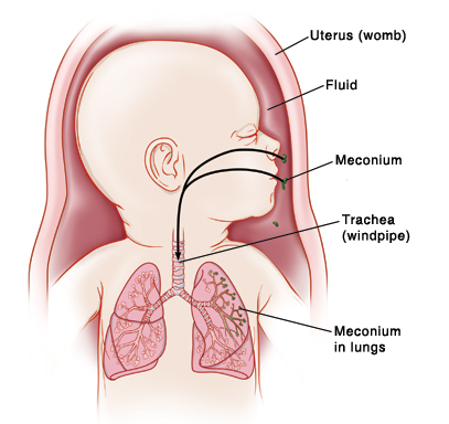 Baby in uterus (womb) with head turned to side showing trachea (windpipe) and lungs. Meconium is in fluid inside womb. Arrows show meconium going through nose and mouth into lungs.